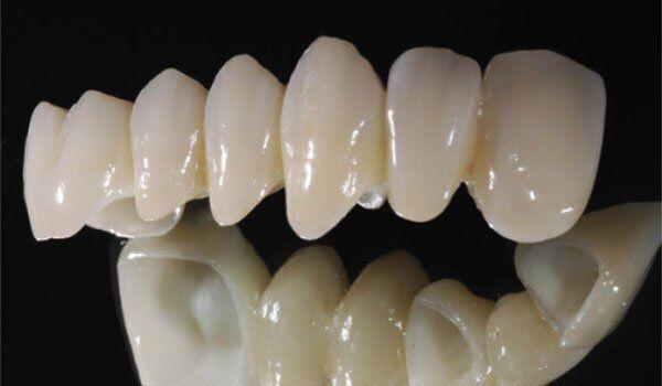 Răng toàn sứ Cercon HT là gì?
