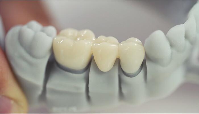 loại răng sứ phổ biến hiện nay