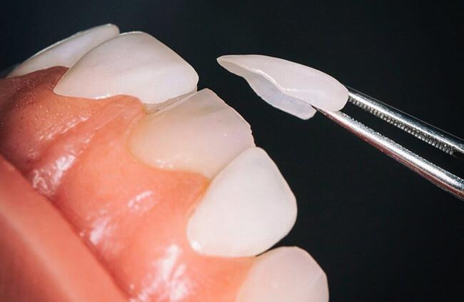 ưu điểm của răng sứ Veneer