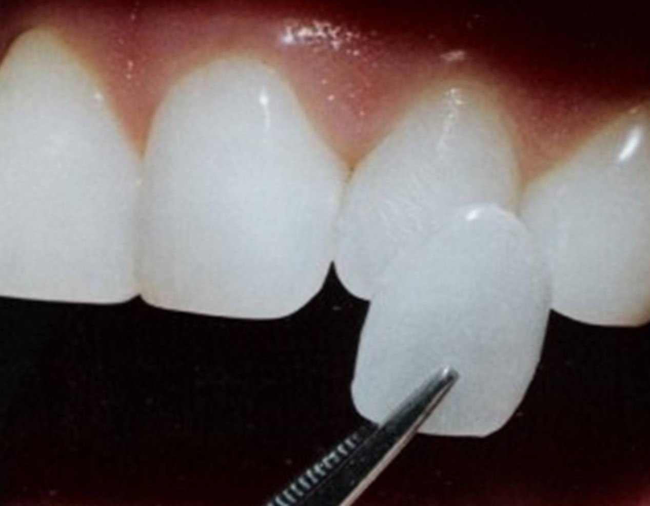 Răng sứ veneer giá bao nhiêu tiền?