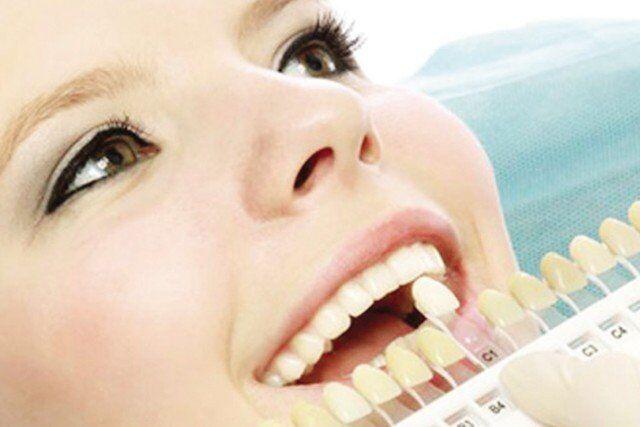 Răng sứ Veneer bảo hành bao nhiêu năm?