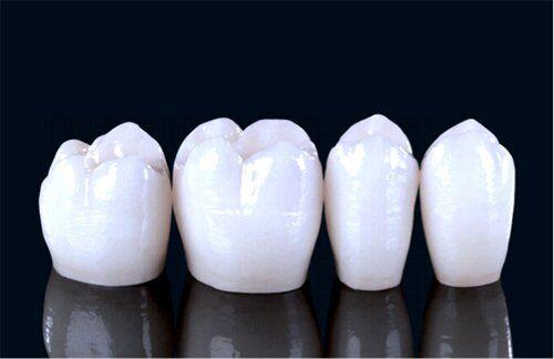 Răng sứ Zirconia có bị xỉn màu không?
