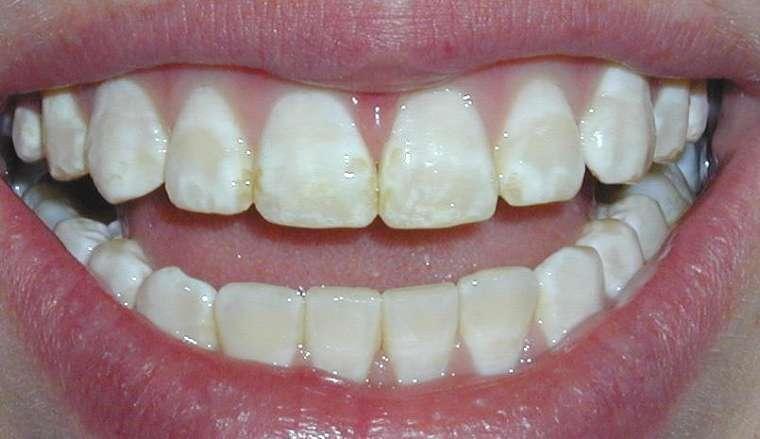 răng thiếu sản