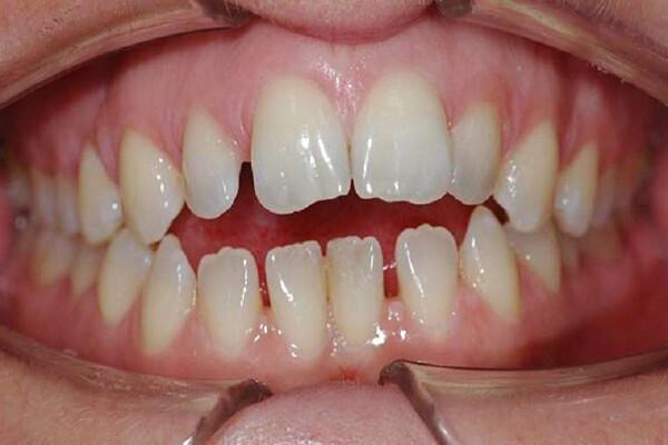 khắc phục răng thưa như thế nào