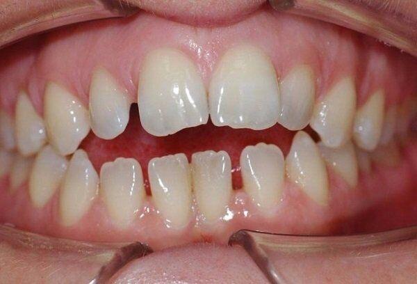 Răng thưa có bọc răng sứ Cercon được không?