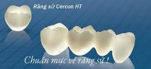 Răng Toàn Sứ Cercon - Khoe Nụ Cười Xinh