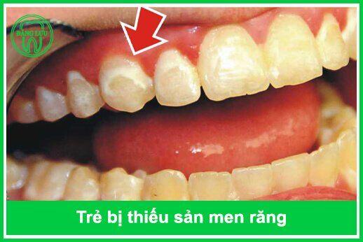 răng trẻ bị thiếu Flour