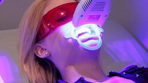 Răng vàng có tẩy trắng được không ?