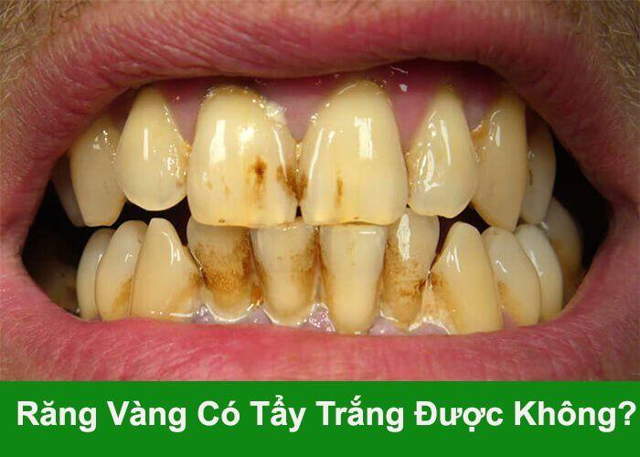 răng vàng có tẩy trắng được không