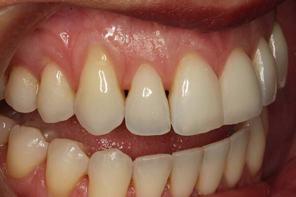 nguyên nhân gây vàng răng cơ bản