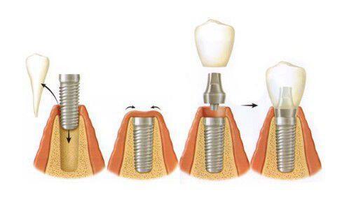 Cấy ghép implant sau bao lâu sẽ lành vết thương?