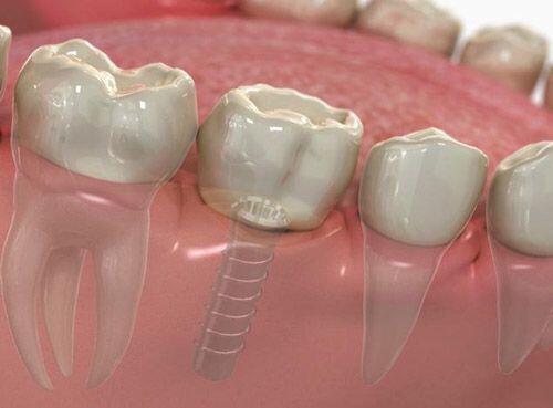 Cấy ghép implant sau khi ghép xương được không ?