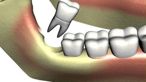 Sau khi nhổ răng khôn xong phải làm gì?