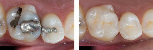 Phương pháp điều trị răng thưa