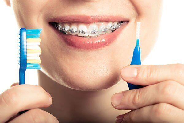 bị sâu răng trong khi niềng răng phải làm sao