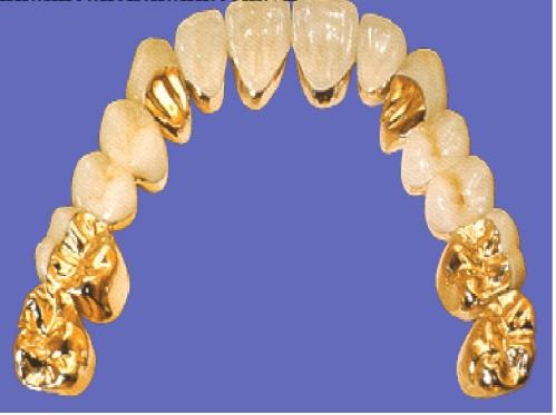 Tác dụng của răng sứ
