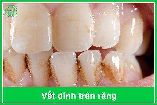 sự hình thành vết dính trên răng