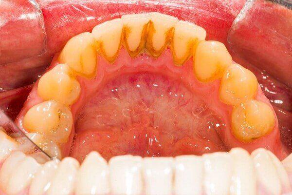 cao răng và sự hình thành cao răng