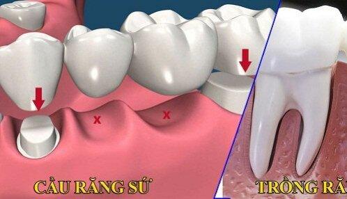 Sự khác biệt của ghép implant và làm cầu răng