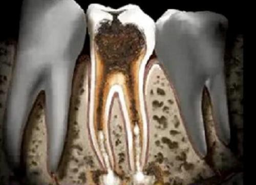 Sự khác biệt giữa viêm tủy răng hồi phục và không hồi phục