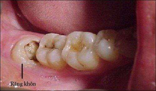 Sự khác nhau giữa răng khôn và răng hàm