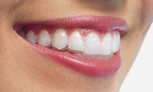 Sự phong phú của các phương pháp niềng răng