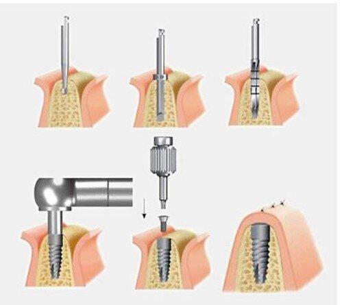 Sự phức tạp của cấy ghép implant