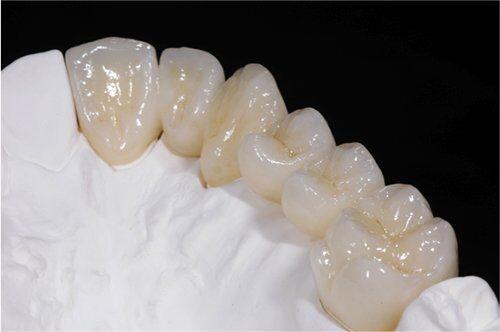 Tác dụng của răng sứ cercon