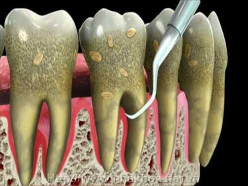 Tác hại của cao răng