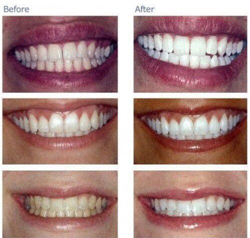 Cách khắc phục tình trạng tẩy trắng răng ê buốt