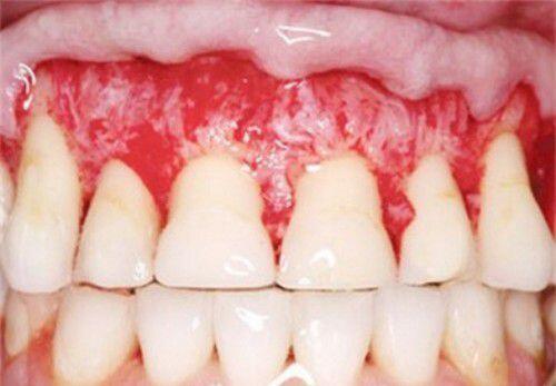 Có nên tẩy trắng răng – TÁC HẠI của tẩy trắng răng là gì?