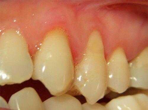 Cách xử lý răng bị xỉn màu