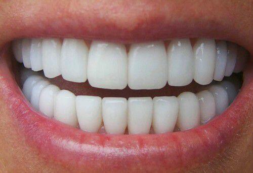 tại sao răng sứ hay bị xỉn màu