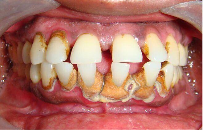 tại sao phải cạo vôi răng định kỳ
