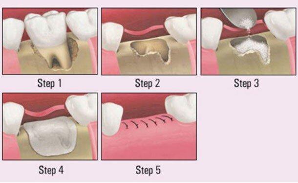 tại sao phải ghép xương khi cấy ghép implant