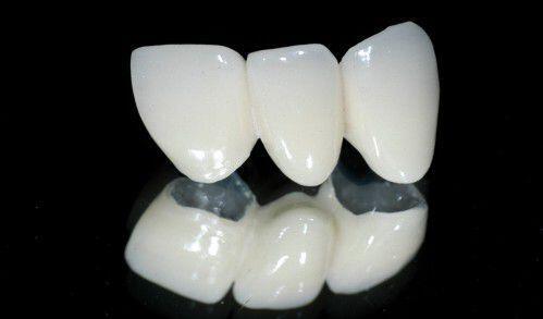 tại sao răng sứ cercon lại được nhiều người lựa chọn