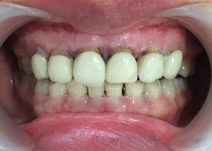 Tại sao răng sứ kim loại bị đen viền nướu?