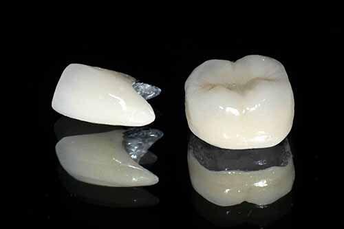 Tại sao răng sứ Titan được ưa chuộng?