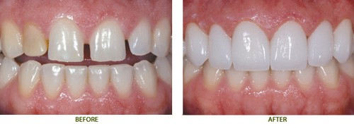 Nguyên nhân khiến răng bị thưa dần