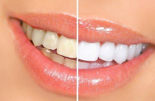 Tại sao răng nhạy cảm hơn khi tẩy trắng ?