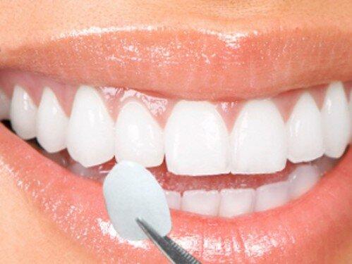 Tại sao không thể tẩy trắng răng có nhiều vết trắng đục