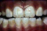 Có tẩy trắng răng loang màu được không