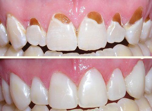 Tái tạo nụ cười với răng sứ Veneer