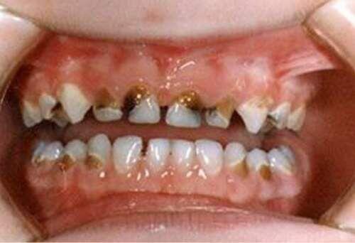 Tạm biệt sâu răng nhờ trám răng