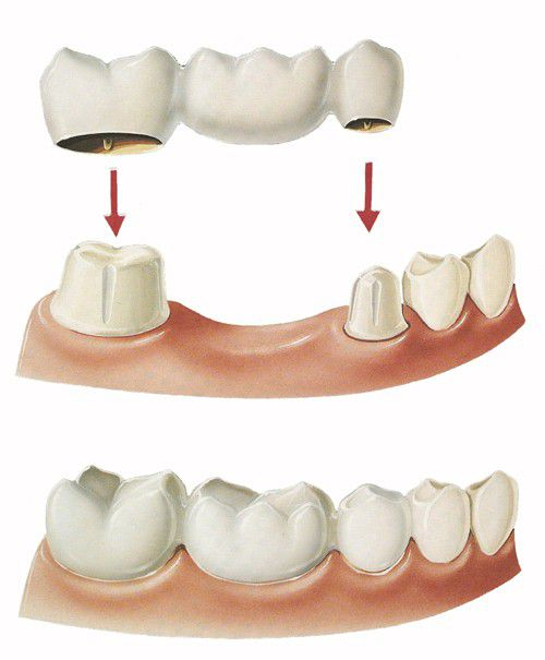Làm cầu răng sứ có gây hôi miệng