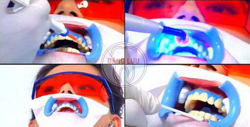 Tẩy trắng răng bằng phương pháp chiếu đèn kết hợp thuốc tẩy