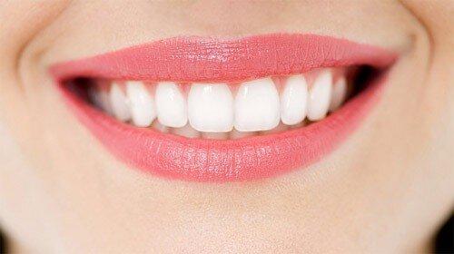 Tẩy trắng răng và lấy cao răng có giống nhau