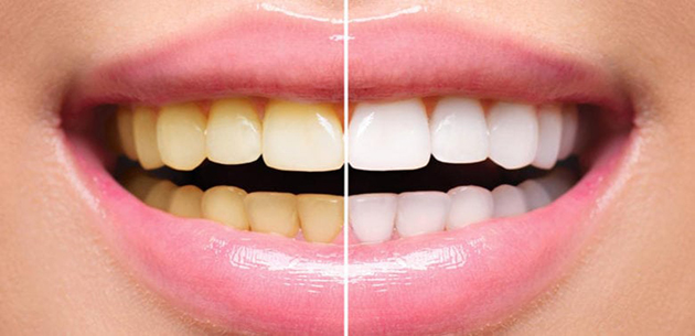 tẩy trắng răng bao lâu thì có hiệu quả