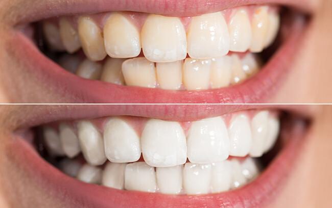 tẩy trắng có ê buốt răng không
