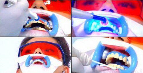 Tẩy trắng răng bằng đèn plasma có hại không ?